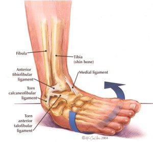 diagram explaining areas of ankle injury