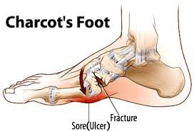 illustration of charcot's foot
