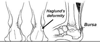 rear view illustration of haglund's deformity