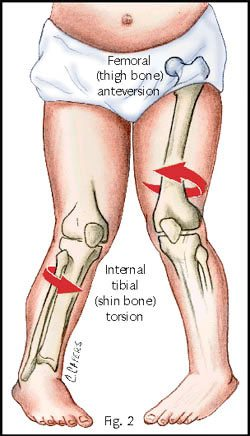 diagram of internal tibial torsion
