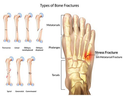 diagram of types of bone stress fractures of the foot