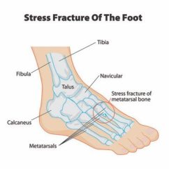 Bones In Your Foot Diagram Autometer Air Fuel Ratio Gauge Wiring Stress Fractures Of The Feet And Ankle Clinic Bone Insufficiency