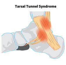 tts - Heel Pain and related conditions