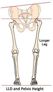lld1 - Leg Length Differences & Heel Lifts