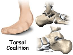 tarsal2 - Tarsal Coalition