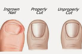 pfht2 - Podiatry Foot Health Tips