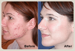 laser treatment results