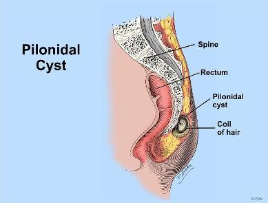 Pilonidal Sinus Recurrence