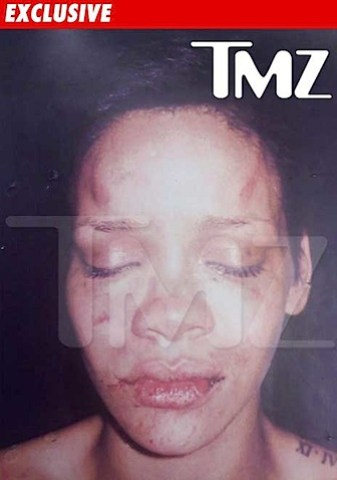rihanna_photo_beating.jpg