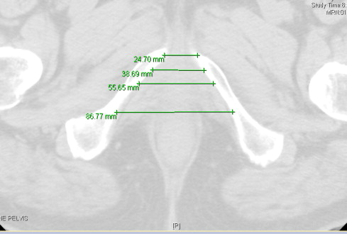Intra-operative pubic arch interference during prostate ...
