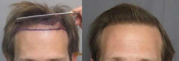 hair-transplant-west-los-angeles