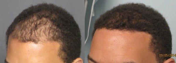 Fue Hair Transplant Los Angeles Dr Sean Behnam