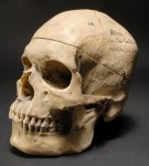 Atai's skull