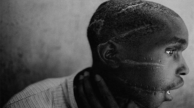 Images of Rwandan Genocide