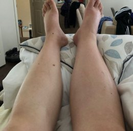 Both legs were swollen, but my right leg was extra swollen and in intense pain when I bent it.