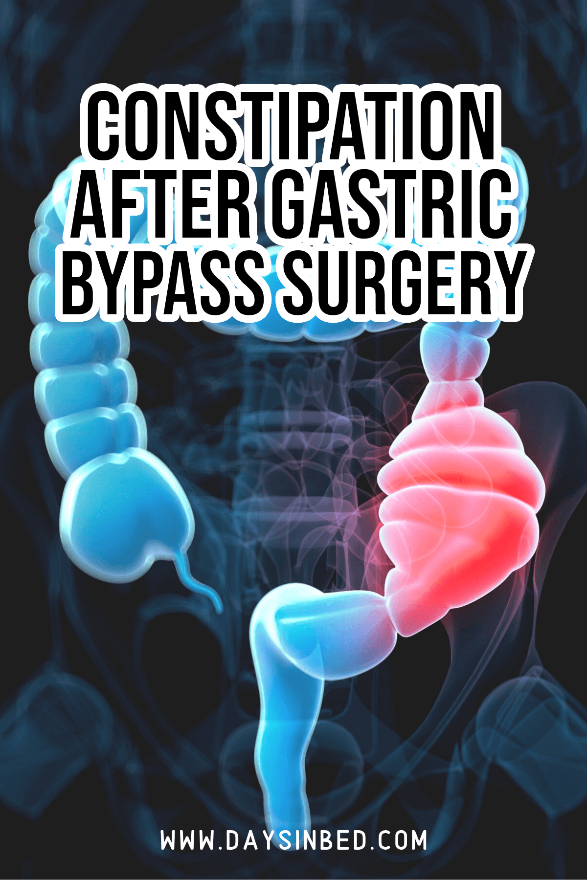 constipation after gastric bypass surgery