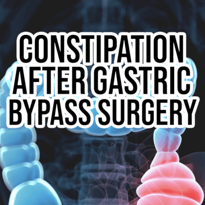 constipation after gastric bypass