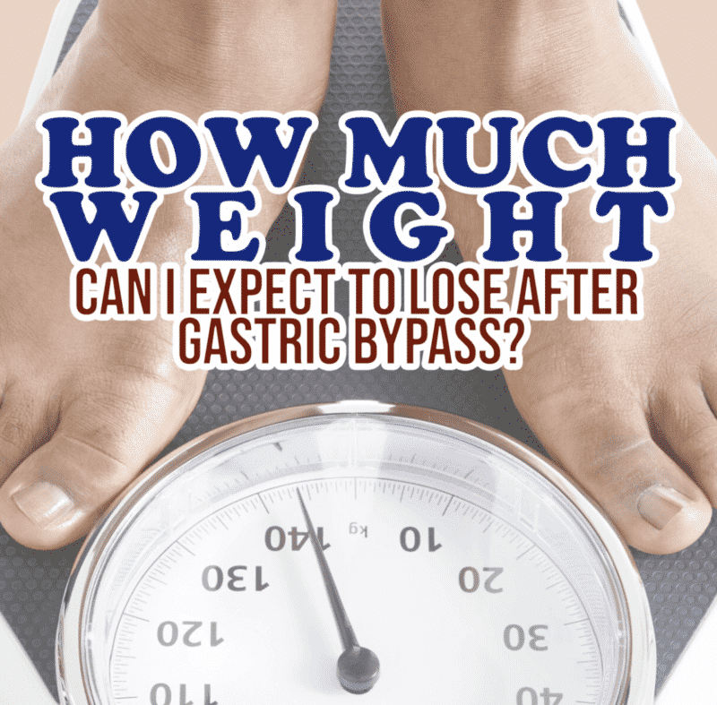How Much Weight Can I Expect to Lose After Gastric Bypass ...