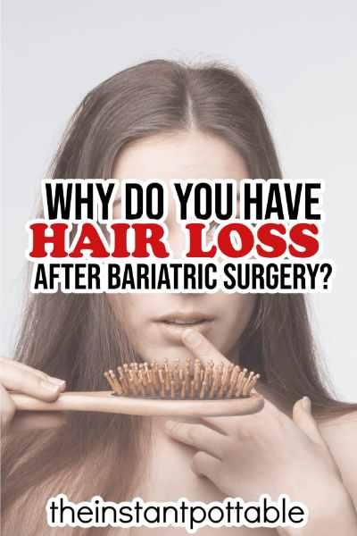 hair loss after weight loss
