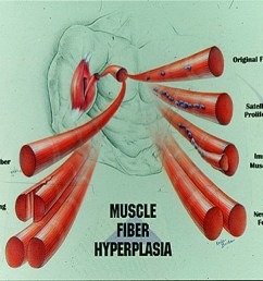 whew hyperplasia pics 2 page 4 [ 1826 x 1500 Pixel ]