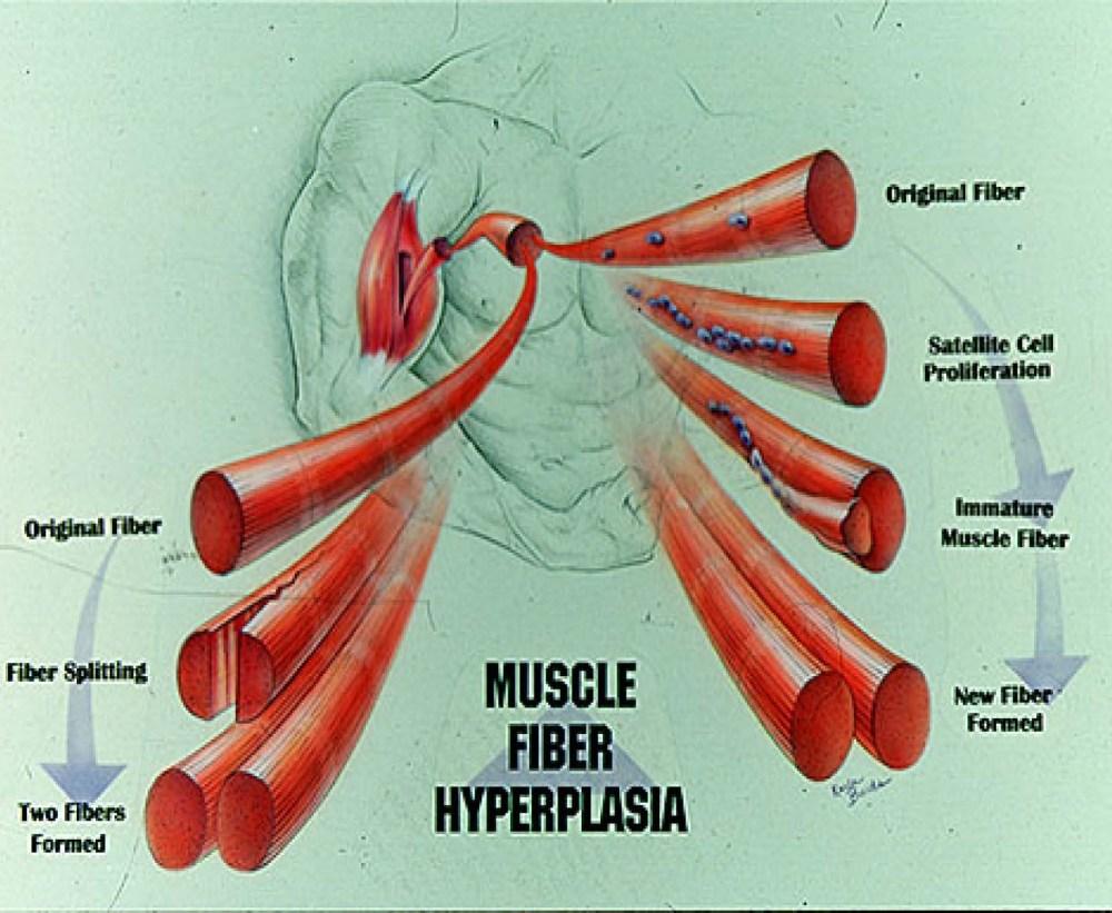 medium resolution of whew hyperplasia pics 2 page 4