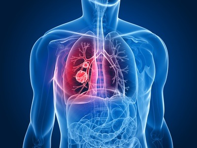 COPD: Chronic Obstructive Pulmonary Disease