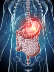 Stomach infection: cure, herbs and natural treatment