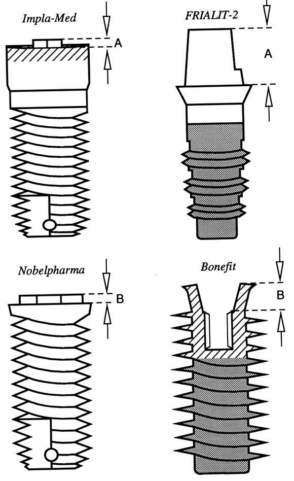 Comparison of strength and failure mode of seven implant