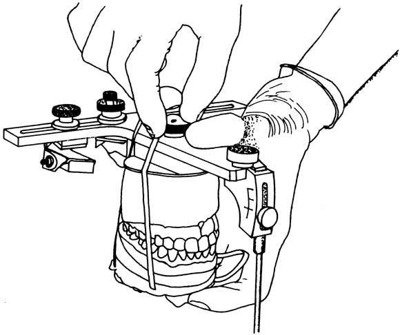 Simple method for articulator mounting of mandibular