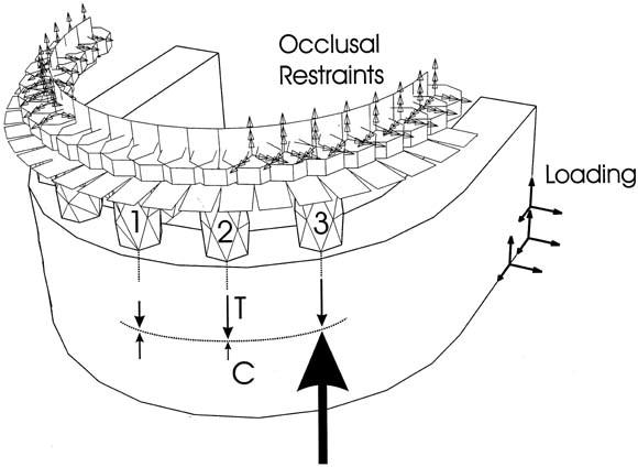 Influence of mandibular superstructure shape on implant