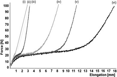 A novel technique, dynamic intraligamentary stabilization