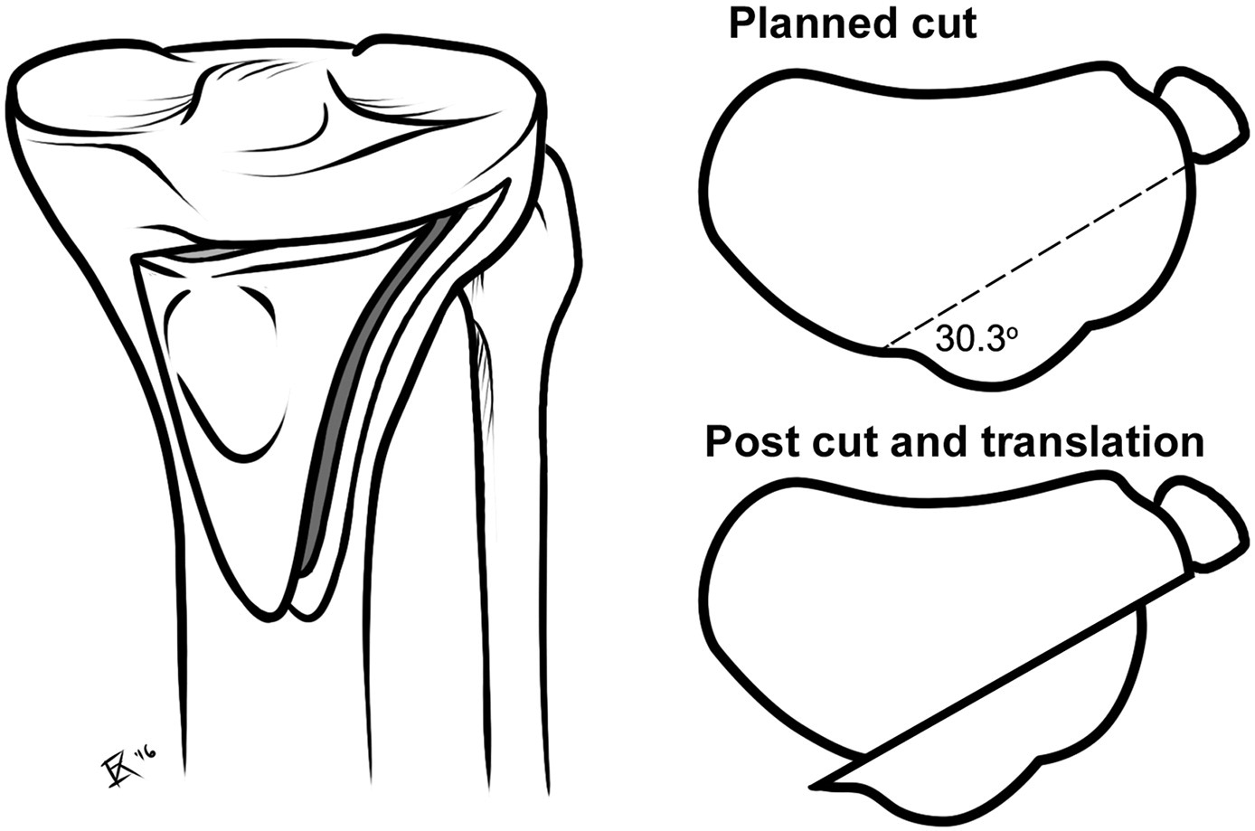 Tibial tubercle osteotomy: A biomechanical comparison of