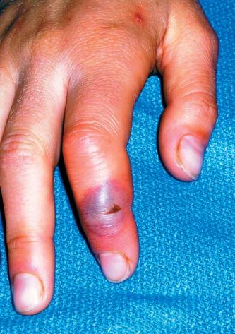 Seal finger - The Lancet