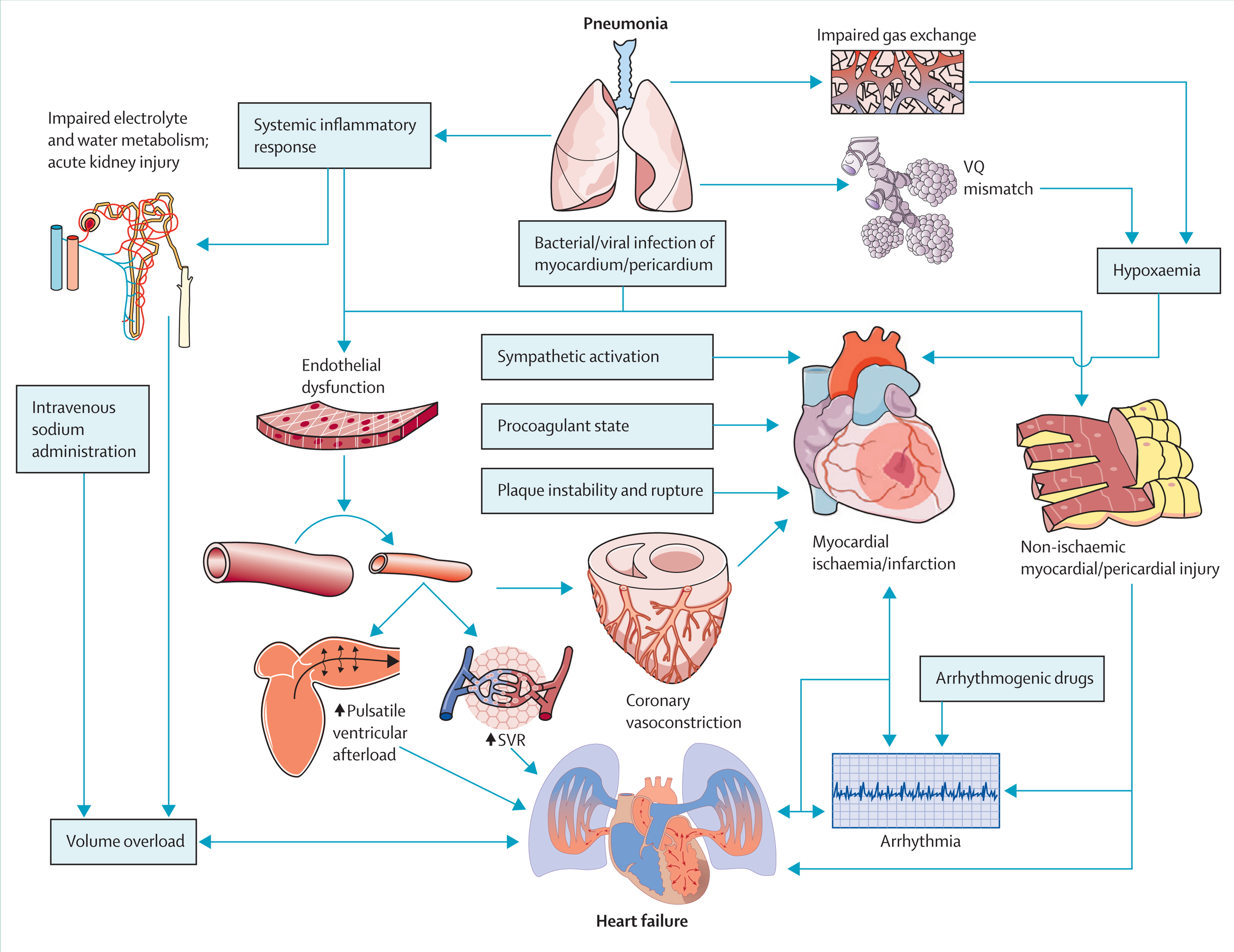 patient management system diagram ford fiesta mk4 stereo wiring acute pneumonia and the cardiovascular - lancet