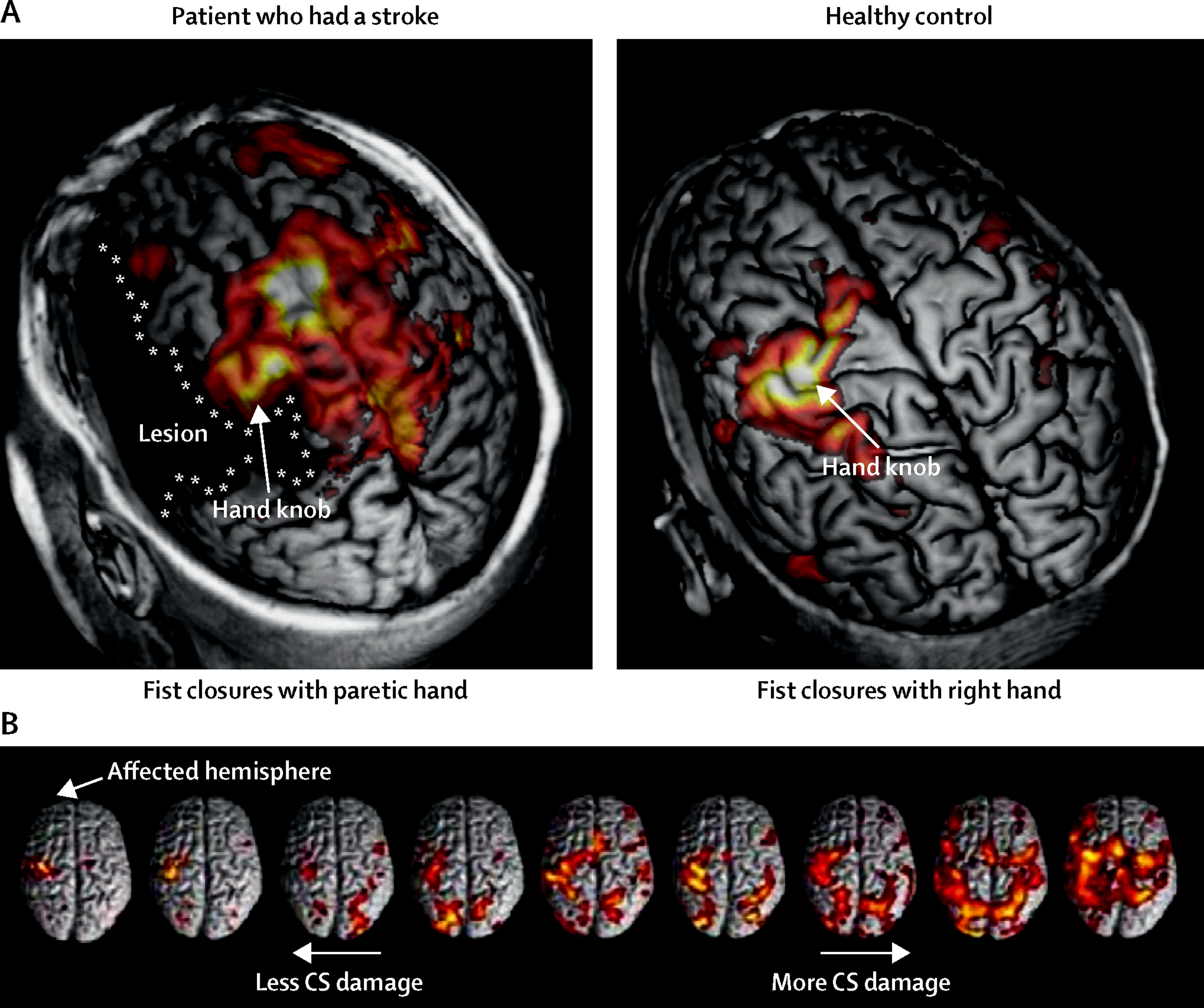 Connectivity Based Approaches In Stroke And Recovery Of