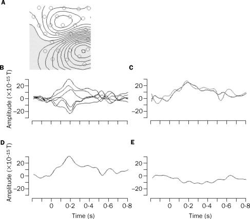 Magnetoencephalographic recordings of visual evoked brain