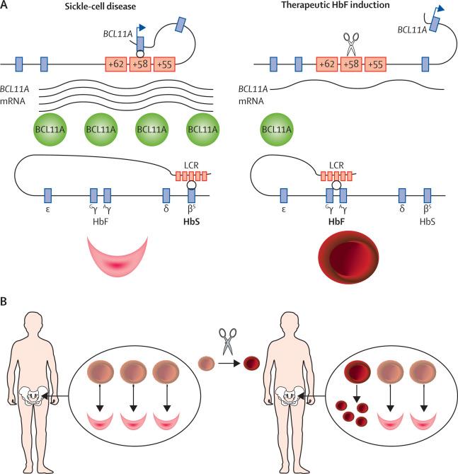Fetal haemoglobin in sickle-cell disease: from genetic ...