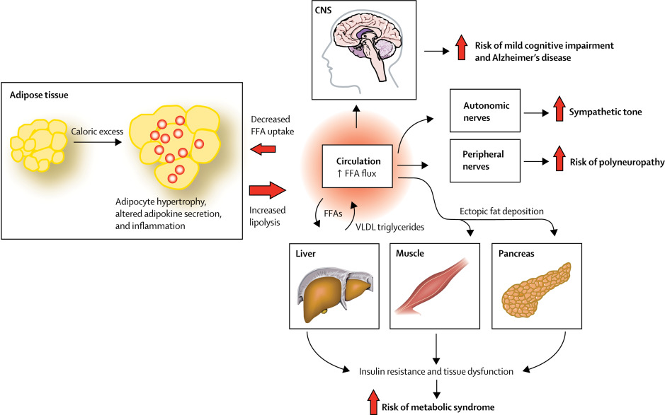 References in Neurological consequences of obesity  The