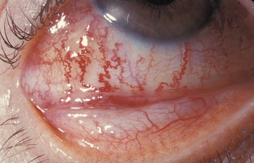 The eye in neurological disease - The Lancet