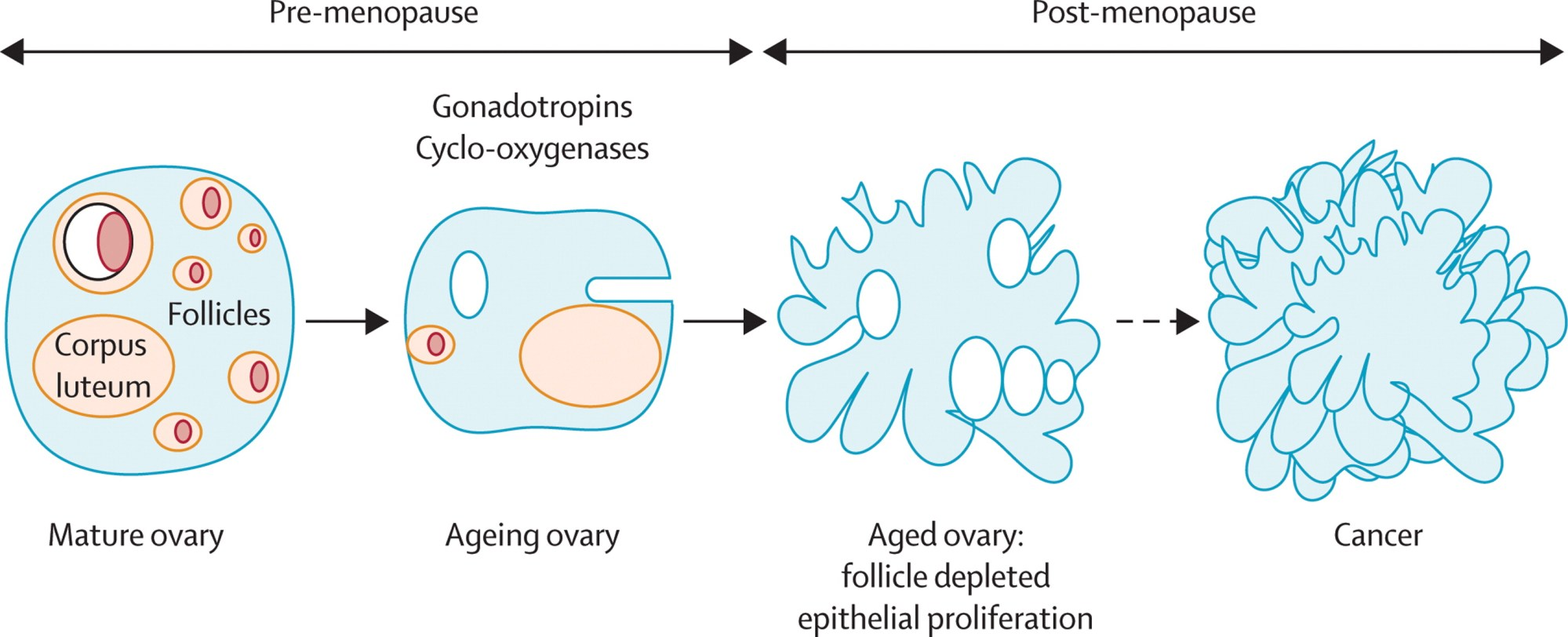 hight resolution of  download ppt follicle depletion explains the