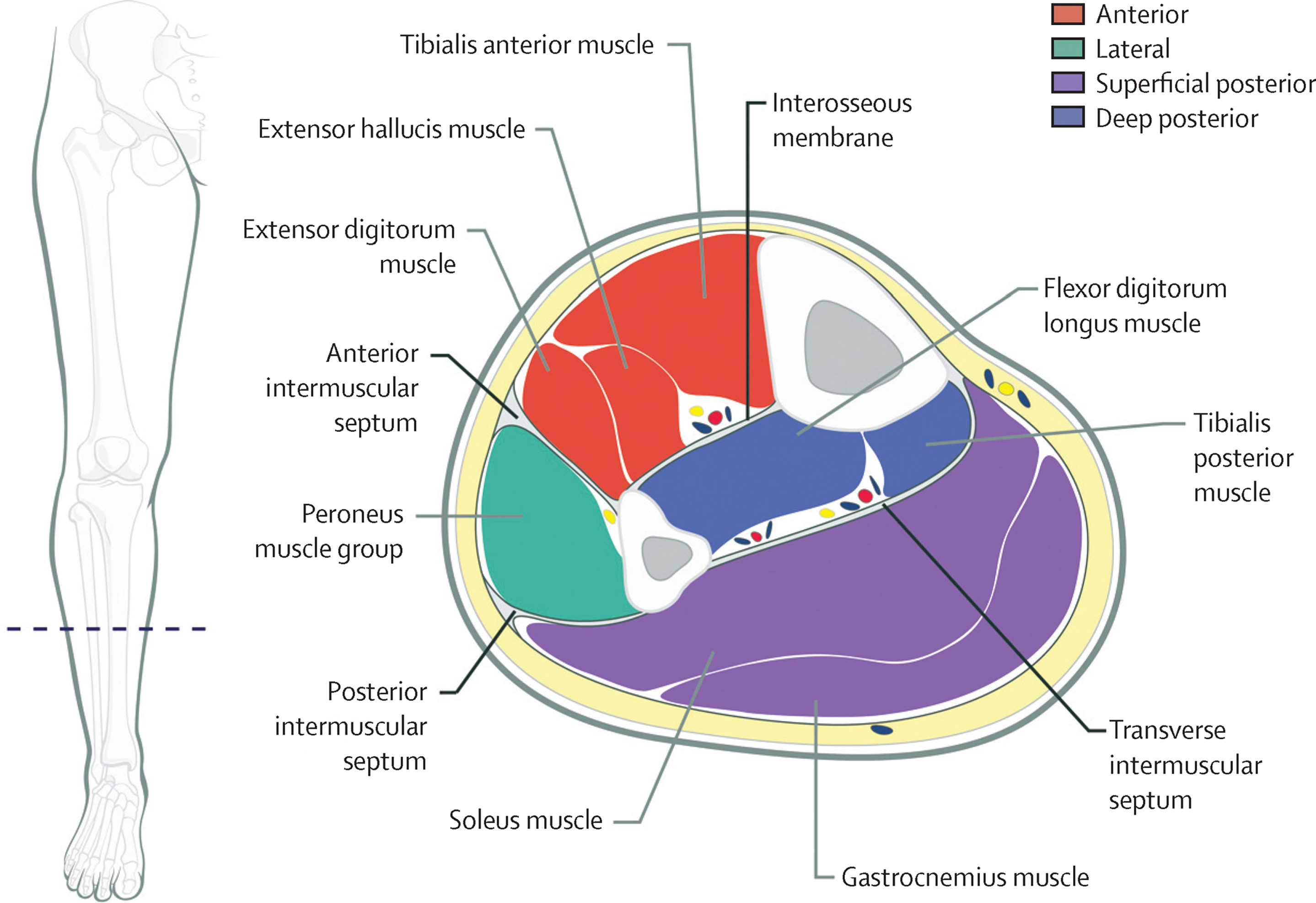 Diagnosis And Treatment Of Acute Extremity Compartment