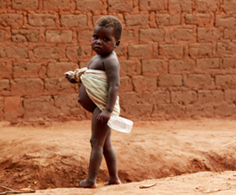 Malnourished child - Copyright: Science Photo Library