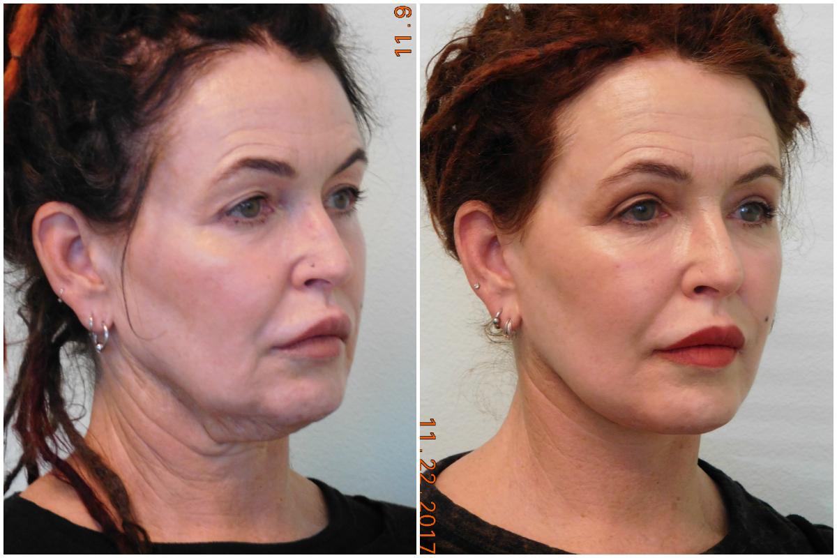 TLC Face & Neck Lift Before & After image Las Vegas ...