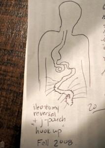 ottawa canada j-pouch bowel health surgery ulcerative colitis colon cancer inflammatory bowel disease