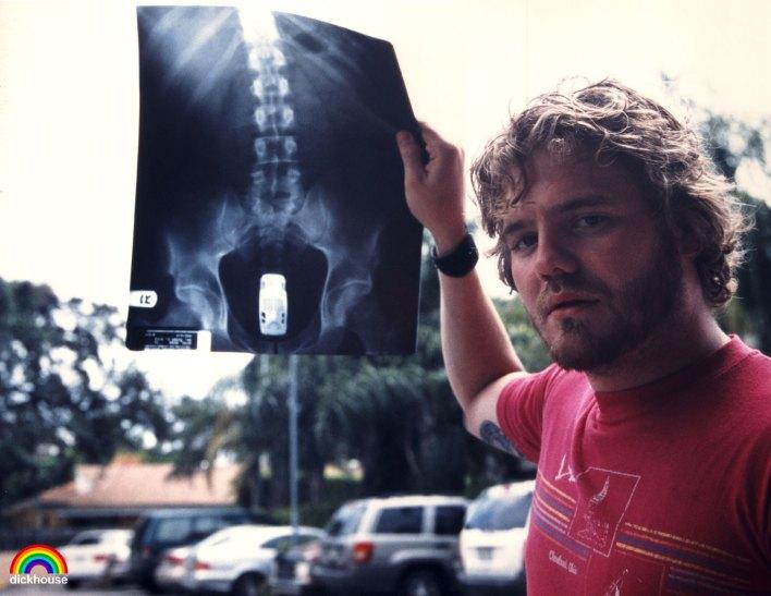 jackass butt x ray