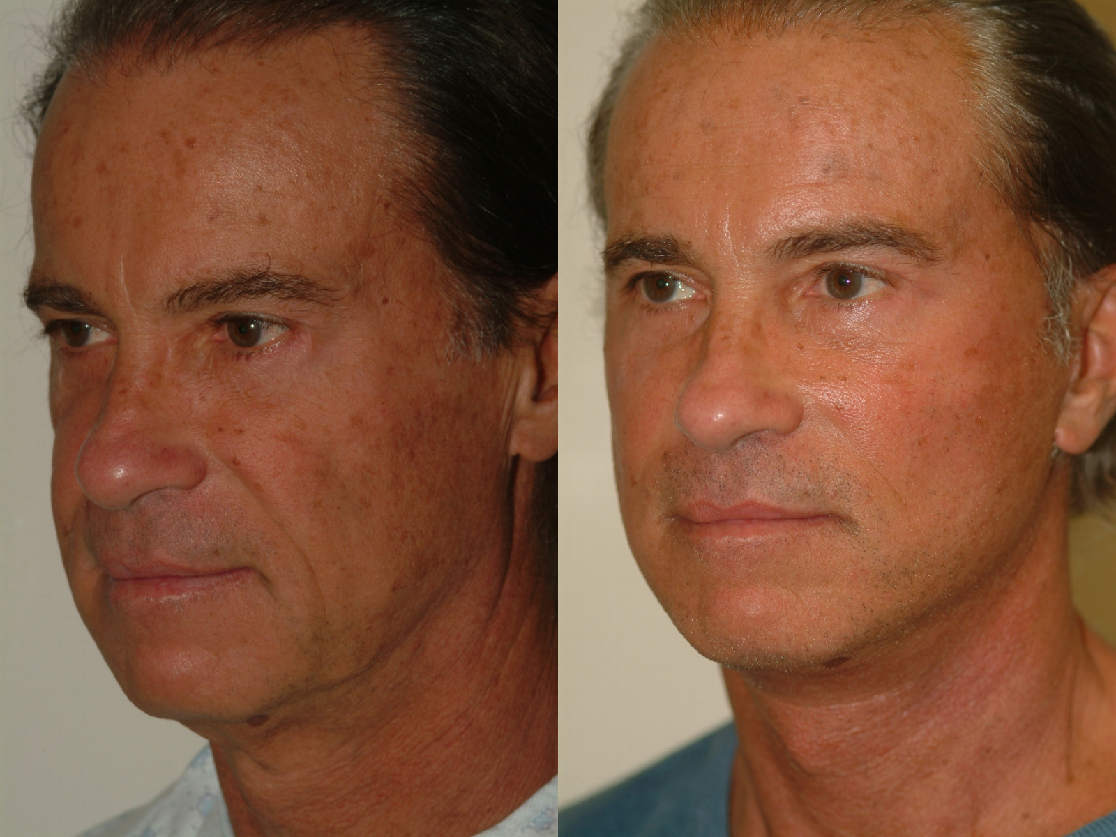 Photo Gallery Beverly Hills CA The Male Face Lift