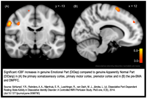 Dissociative_identity_disorder_neuroscience_brain_imaging