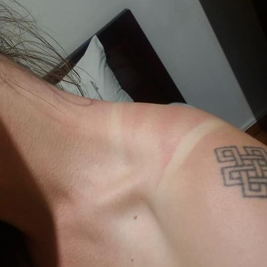 Woman's shoulder/neck with sun burn marks from a tank top - up close