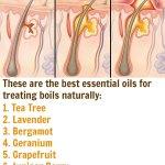9 Best Essential Oils for Boils & DIY Recipes