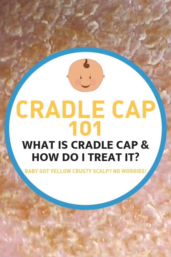 Cradle cap baby - cradle cap treatment 101 how to treat yellow crusty baby scalp